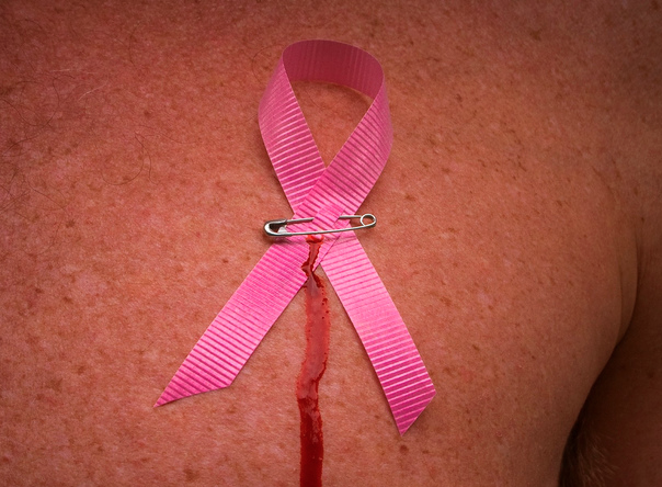 Rowan Douglas explores breast cancer in the context of trans people, assessing risks and giving advice as to how you may wish to protect yourself. Credits: Bill